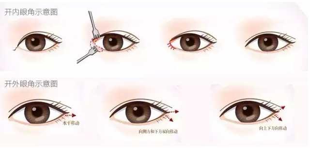 上海美莱权威眼修复专家尹度龙拯救你的缺憾