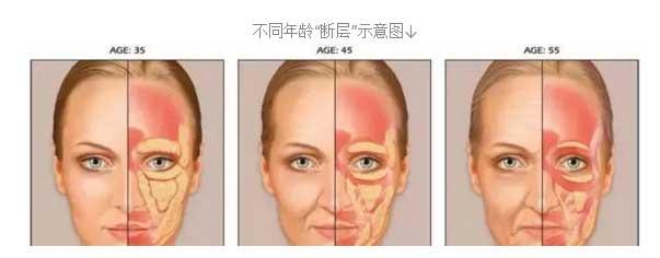 上海美莱射频紧肤对抗皮肤皱纹和松弛