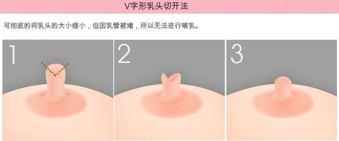 乳头缩小术后多久恢复