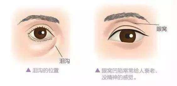 眼窝凹陷是泪沟吗
