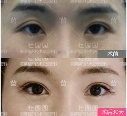 重睑弧度修复+大小眼修复+开内眦