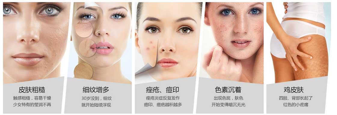 上海去哪做果酸换肤比较好