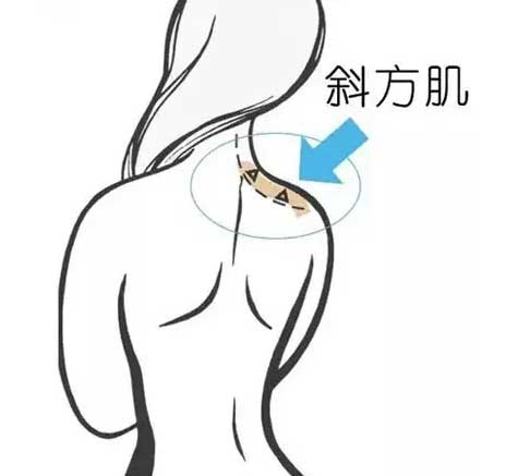 美莱瘦肩针|想要美丽天鹅颈、小香肩,抓紧些啦