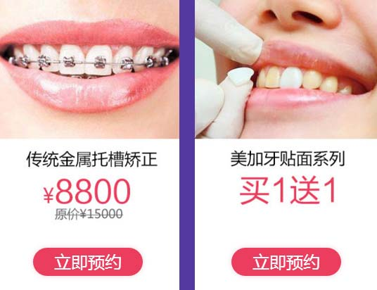 美莱全瓷牙贴面的价格到底贵不贵