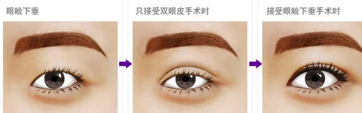 上海做上眼睑下垂手术价格贵吗