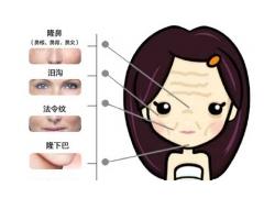 上海填泪沟用再生因子好还是玻尿酸好