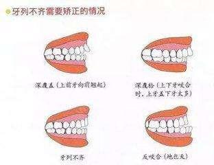 十二岁的孩子适合做牙齿纠正吗
