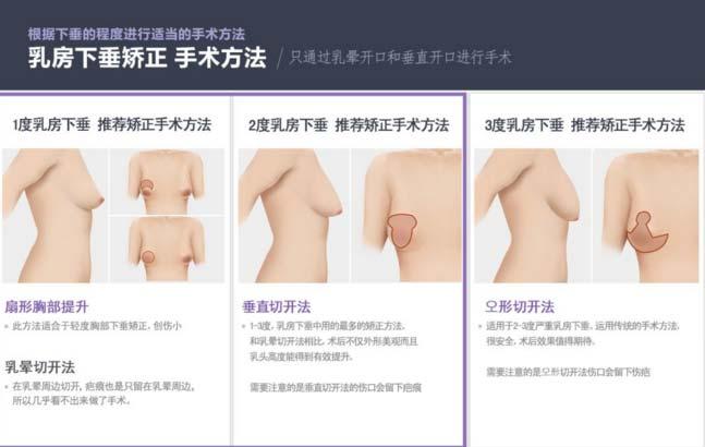 胸部下垂可以怎么来提升