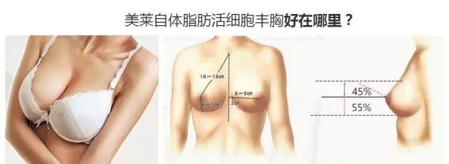 美莱自体脂肪丰胸手术费用一般要多少钱