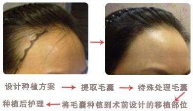 在上海做发际线要多少钱