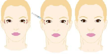 眼部打玻尿酸皱纹多久消除