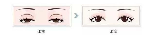 单眼皮又是上睑下垂,只做双眼皮可以吗