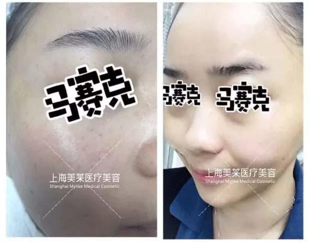上海美莱水光针案例