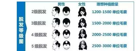 上海做植发费用是怎么算的