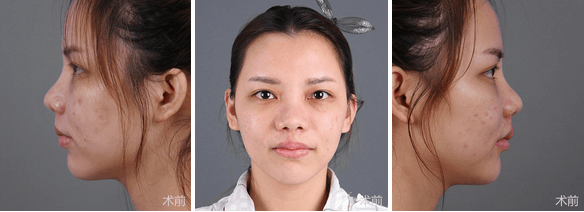 上海美莱李保锴鼻部整形案例