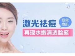 上海激光祛痘一般多少钱