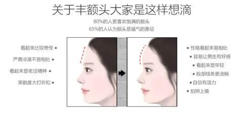 上海美莱填充额头的方法有哪些