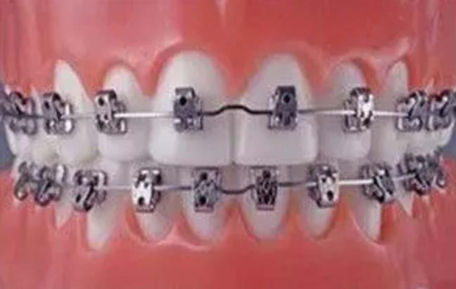 美莱口腔美容魏东介绍牙齿矫正器有哪些