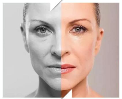 衰老也分阶段?快跟随美莱自测下你的衰老程度!