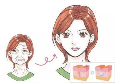 美莱微整形申涛:玻尿酸是什么有什么作用