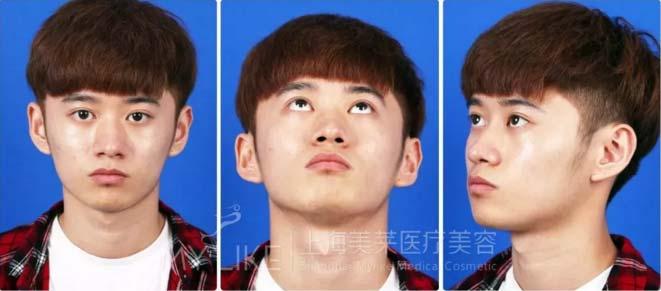 上海美莱隆鼻真人案例