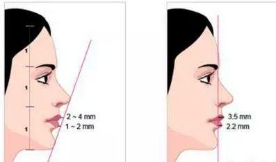 美莱做假体隆下巴手术是怎么样的