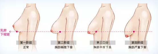 胸部太大有点下垂怎么办如何矫正