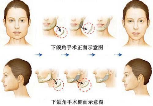 改脸型,瘦脸针和磨骨哪个方法更好