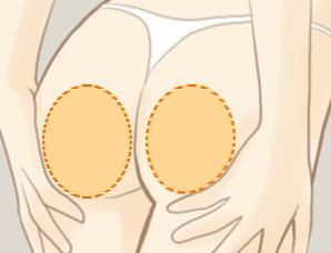 臀部吸脂安全吗会不会有风险存在