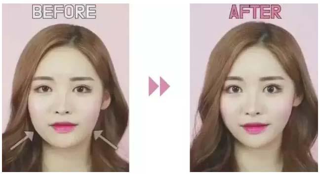 """抖音同款瘦脸贴,效果能超过""""美莱V脸针"""""""