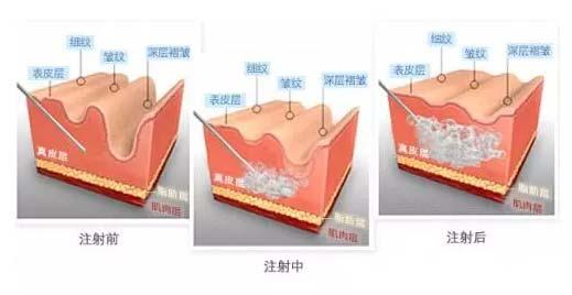 上海美莱揭秘:玻尿酸和瘦脸针可以同时打吗