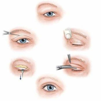 眼皮松弛不可以做埋线双眼皮吗