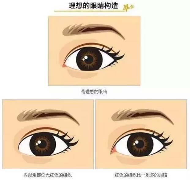 开眼角会改变双眼皮吗