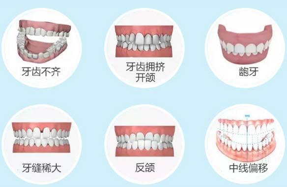 上海做矫正牙齿哪里好