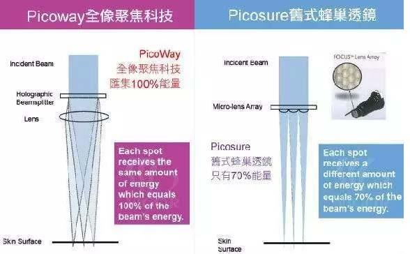 上海美莱picoway超皮秒去除雀斑效果好吗