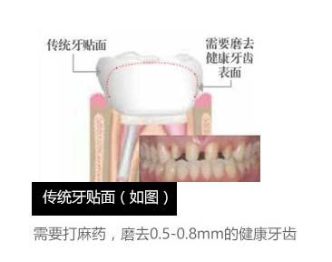 上海做超薄牙贴面哪家好