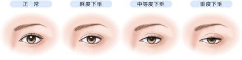 上海做上眼睑提肌手术一般多少钱