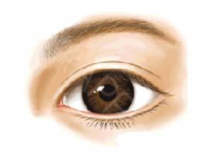 美莱上睑下垂矫正可解决眼皮松弛吗