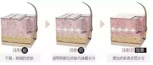 上海美莱注射水光针效果