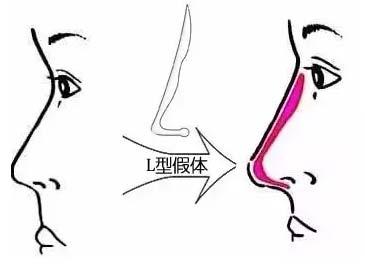 """上海美莱畅享激情盛夏,别给美丽留败""""鼻"""""""