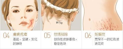 上海祛疤做飞秒激光手术多少钱
