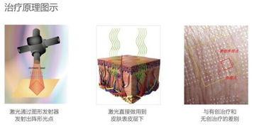 上海做点阵激光去痘坑效果好吗