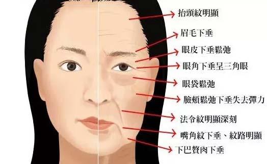 美莱关于脸部松弛下垂怎么提升