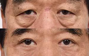美莱皮肤松弛型眼袋