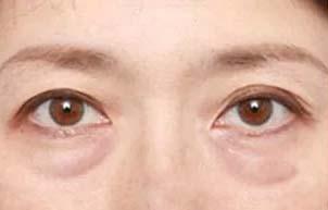 美莱泪沟型眼袋