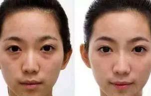 美莱假性黑眼圈型