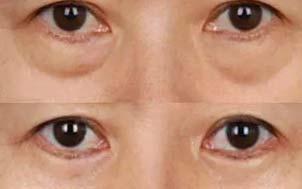美莱眼周皱纹+轻度松弛型圈型