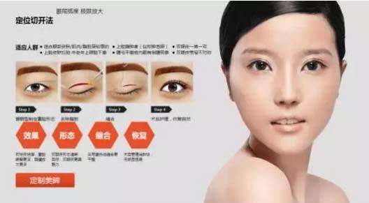 上海美莱定位切开法双眼皮