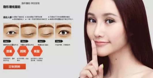 上海美莱埋线法双眼皮
