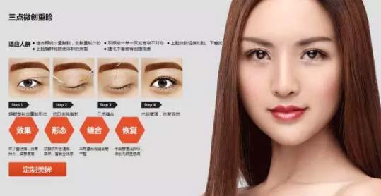 上海美莱三点微创切开法双眼皮